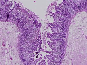 Hallazgos de la microscopia óptica. Tinción con hematoxilina-eosina que muestra una atrofia vellositaria moderada con ausencia de infiltrado inflamatorio en la lámina propia. Se observan agrupaciones de enterocitos formando penachos.