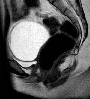Resonancia magnética pélvica. Imagen sagital potenciada en T2 en la que se identifica un quiste de ovario improntando el techo de la vejiga y se puede identificar que la pared posterior de la vejiga y la anterior del recto están en contacto por la ausencia de útero y tercio superior de vagina.