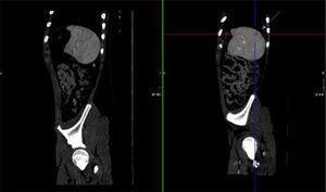 Corte sagital: en la imagen de la derecha (A) se muestra la lesión esplénica señalada con flechas. En la imagen de la izquierda (B) ha desaparecido.