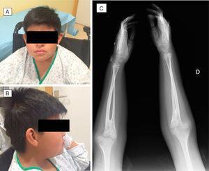 A y B) Visión frontal y lateral del paciente. C) Radiografía de antebrazos con hallazgo de sinóstosis radioulnar.