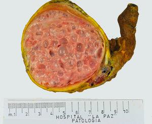 Imagen macroscópica de un teratoma de tipo pospuberal en un paciente de 16 años. Casi la totalidad del parénquima está sustituido por numerosos quistes.