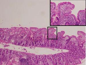 Mucosa duodenal con atrofia vellositaria.
