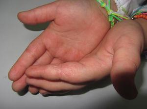 Niña de 8 años con eccema de manos. Las pruebas epicutáneas mostraron positividad para Kathon (metilcloro-metilisotiazolinona) y formaldehído, considerándose de relevancia presente. Los alérgenos estaban presentes en los productos de manualidades que utilizaba habitualmente la paciente. Nótese la afectación de múltiples subunidades anatómicas.