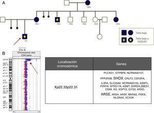 A) Pedigrí de una familia portadora de una deleción Xp22.33-p22.31. B) Resultado del análisis mediante aCGH, que implica la pérdida de los genes SHOX y ARSE, principales responsables de las alteraciones fenotípicas.