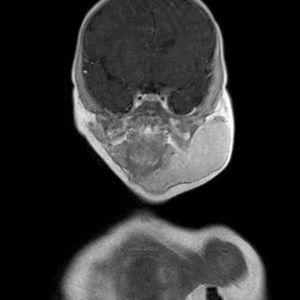 Corte coronal contraste en área hemangioma parotídeo, que llega hasta submandibular y línea media.