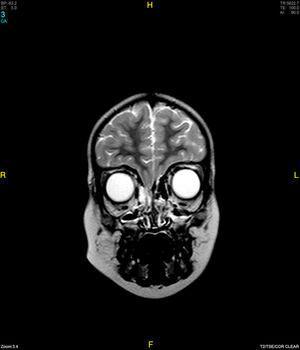 RMN cerebral, secuencia T2 en el que se aprecia encefalocele frontoetmoidal derecho.