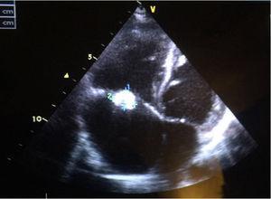 Ecocardiografía al diagnóstico: CIV perimembranosa, vegetaciones en válvula tricúspide, insuficiencia tricuspídea moderada y FEV 72%. Coincidiendo con el diagnóstico de SHF se comprueba rotura de las cuerdas del velo anterior de la válvula tricúspide.