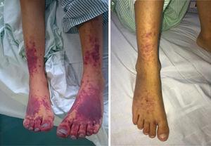 a) Lesiones purpúricas confluentes en región distal de miembros inferiores tras el diagnóstico de síndrome hemofagocítico; b) Evolución de las lesiones purpúricas tras el empleo de bolos de metilprednisolona y parches de nitroglicerina.