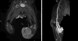 Resonancia magnética que muestra masa heterogénea hiperintensa en T2 respecto al músculo, con múltiples imágenes de vacío de señal en su interior. Tras la administración de contraste se evidencia realce intenso, difuso, de predominio arterial y con neoangiogénesis, compatible con sospecha clínica.