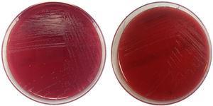 Imagen de colonias de Actinotignum schaalii en medios de cultivo. Crecimiento en agar sangre tras 48 h de incubación en condiciones anaerobia (izquierda) y aerobia (derecha).