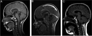Controles de RM (cortes sagitales): A) Al diagnóstico: tumoración sólido-quística en región pineal con hidrocefalia secundaria&#59; tamaño 34×22×21mm. B) Al mes de iniciar quimioterapia con empeoramiento clínico, y con aumento del tamaño y del componente quístico de la lesión. C) RM a los 2 meses de finalizar el tratamiento con cambios posquirúrgicos como único hallazgo, sin signos de restos tumorales.