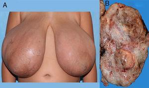A: imagen de las mamas patológicas. B: imagen macroscópica de la pieza quirúrgica.