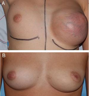 A. Tumoración mamaria del caso 1 previo a la cirugía. B. Resultado tras resección simple de la lesión.