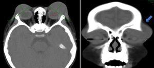 Tomografía de cráneo contrastada realizada tras 3 semanas de evolución, muestra imagen axial (A) y coronal (B) donde se identifica colección palpebral bilateral (flecha azul) de 42,75×14,88 mm en el párpado derecho y de 47,16×21,70 mm en el párpado izquierdo, sin afectación de la órbita. Se observa compromiso de los senos etmoidales y en el área donde inician su formación los senos frontales, además de reacción perióstica frontal.