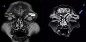 Resonancia magnética cerebral con imágenes en corte coronal potenciadas en T2 (A) y T1 (B) realizada tras 9 días de tratamiento con antibióticos intravenosos que muestra área de hiperintensidad (flecha azul) palpebral bilateral con dimensiones de 17,30×8,99 mm para el párpado derecho y de 20,60×9,12 mm para el párpado izquierdo. Se observa compromiso de los senos etmoidales y en el área donde inician su formación los senos frontales, además de reacción perióstica frontal.