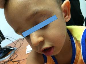 Facies dismórfica (frente prominente, hipertelorismo ocular, filtrum alargado y orejas de implantación baja) y léntigos.
