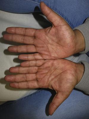 Máculas eritematosas redondeadas en las palmas de las manos.