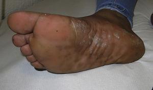 Lesiones confluyentes de predominio en el arco plantar con gran componente descamativo.