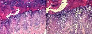 a) Hiperqueratosis compacta con cambios degenerativos vacuolares en segmentos superiores de epidermis (hematoxilina-eosina, ×100). b) Degeneración vacuolar de queratinocitos de estratos espinoso y granular, y presencia de múltiples gránulos citoplasmáticos eosinófilos (hematoxilina-eosina, ×200).