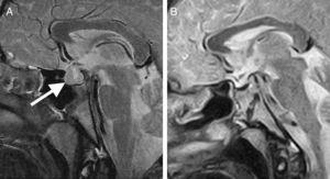 A) RM de hipófisis. La flecha señala el adenoma hipofisario de 13×17,7×15mm, con mayor crecimiento supraselar y obliterando la cisterna supraquiasmática. B) RM de control 6 meses después de la resección completa.
