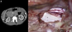 A) Tomografía abdominal donde se aprecia lesión lineal con contenido aéreo en L1 (trayectoria del puñal). B) Imagen intraoperatoria tras la laminectomía L1-L2 donde se aprecia un corte limpio a nivel dural (+: duramadre; *: raíz nerviosa).