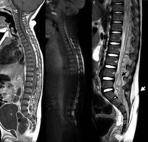 RM de columna completa en plano sagital: a) Secuencia T1-contraste que muestra un absceso epidural posterior con compresión medular y distensión vesical (*blanco)&#59; b) Secuencia difusión que pone de manifiesto restricción en la colección epidural&#59; c) Secuencia T2 que muestra seno dérmico (flecha blanca), duramadre (flecha negra) y quiste dermoide intradural (*negro).