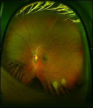 Examen de fondo de ojo que demuestra 2 lesiones granulomatosas en la arcada inferior.