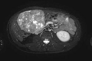 En la resonancia magnética abdominal se objetiva una masa dependiente de lóbulo hepático III de 12,5cm de eje craneocaudal, 10,5cm de eje transverso y 7cm de eje anteroposterior. No presenta otras alteraciones focales, tampoco afectación adenopática intraabdominal ni afectación vascular.