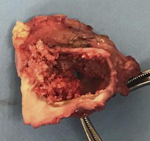 Pieza quirúrgica. Obsérvese el conducto de Contegra® calcificado y con una importante estenosis.