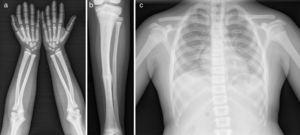 Serie ósea: esclerosis de huesos tubulares (a, b) con fracturas de estrés y patológicas (b). Aumento de densidad ósea generalizada, mayor en costillas y cuerpos vertebrales (c).
