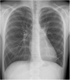 Radiografía de tórax. Resolución del hidroneumotórax izquierdo con reexpansión del parénquima pulmonar izquierdo.