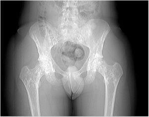 Radiografía de caderas.