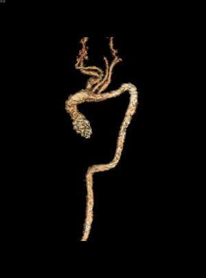 Angio-RMN. Reconstrucciónvolumen renderingen 3 dimensiones de aorta torácica y troncos supraaórticos. Severa elongación de aorta torácica con hipoplasia de cayado distal. Bucles en la transición entre aorta ascendente y transversa, transversa y descendente, y en la transición toraco-abdominal. Troncos supraaórticos muy elongados.