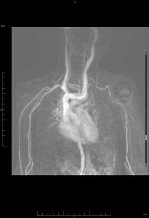 Angio-RMN. Reconstrucción 3D MIP que incluye los trayectos arteriales y venosos de cuello, tórax y miembros superiores. Se aprecia llamativa elongación con formación de bucles de aorta torácica, troncos supraaórticos y ambas arterias axilares y braquiales.