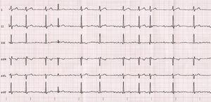 Electrocardiograma caso 1.