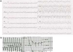 a) Electrocardiograma mostrando una taquicardia regular de QRS ancho, eje inferior-izquierdo, y morfología de bloqueo de rama izquierda; b) Electrocardiograma realizado durante la cardioversión eléctrica. Después del choque, el ritmo sinusal es restaurado.