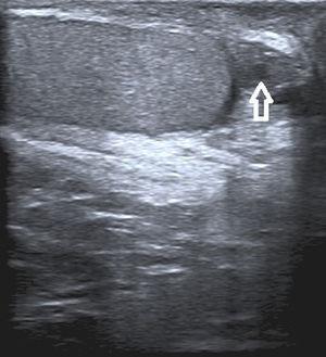 La ecografía escrotal mostró un nódulo heterogéneo de 13×12mm isoecoico al testículo con zonas hipoecoicas. La lesión tenía una apariencia quística.