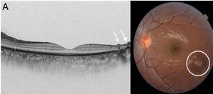 A) Imagen obtenida mediante OCT; se observa hipertrofia del epitelio pigmentario y ausencia de capas estructuradas en la retina. Depósitos prerretinianos hiperreflectivos como estalagmitas (flecha). B) Imagen de fondo de ojo con cicatriz coriorretiniana típica (círculo).