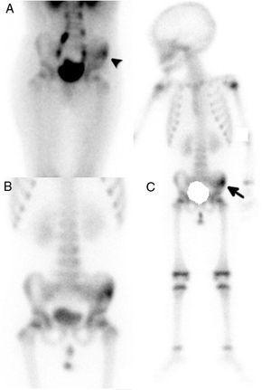 Gammagrafía ósea de pelvis y cuerpo completo en 3 fases. En la fase precoz, a los 5min de la inyección del radiotrazador, se visualiza un aumento de la vascularización en la hemipelvis izquierda (A, punta de flecha), que en la fase tardía, a las 3h postinyección, se correspondió con actividad osteoblástica en la pala ilíaca (B y C, flecha).