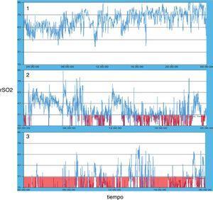 Patrones oximétricos tipo en el registro de 24h observados en los pacientes del estudio.