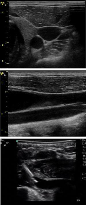 Exploración vascular cervical con ecografía a pie de cama. A)Corte transversal de los vasos identificando la arteria carótida como estructura hipoecoica redondeada y la vena yugular como estructura hipoecoica ovalada algo más superficial. B)Corte longitudinal de los vasos; se identifican la vena yugular a nivel más superficial y la arteria carótida a nivel profundo. C)Imagen de una canalización de la vena subclavia en un paciente neonato mediante abordaje longitudinal en plano.