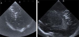 Cortes coronal oblicuo (A) y sagital derecho (B) de la ecografía mostrando imágenes lineales hiperecogénicas, en surcos, centro semioval y sustancia blanca profunda del hemisferio derecho. Imágenes compatibles con embolismo cerebral.