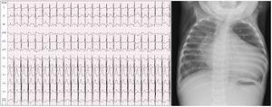 Cardiomegalia con índice cardiotorácico de 0,7 y un patrón hiliofugal en el pulmón derecho. ECG: signos de dilatación del ventrículo izquierdo (R en V6, S en V1) e isquemia miocárdica anterolateral izquierda (descenso de ST y T negativa en i, aVL, V6).