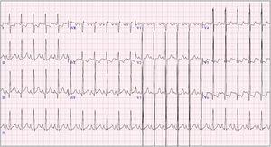 Ecocardiograma a los 6 meses: signos de isquemia subendocárdica con la presencia de onda Q profunda en iii.