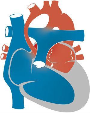 Representación esquemática de síndrome de corazón izquierdo hipoplásico. Nótese el infradesarrollo de las estructuras del lado izquierdo del corazón.