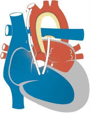 Representación esquemática del procedimiento del estadio 1. Se representan distintas fuentes del flujo pulmonar: fístula Blalock-Taussig modificada (1), conducto del ventrículo derecho a la arteria pulmonar situado a la derecha (2) o a la izquierda (3) de la neoaorta.