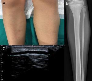 A) Se aprecia discreto aumento de partes blandas en el tercio superior de la pierna izquierda. B) Se aprecia radiografía que constata el aumento de partes blandas, y se observa una reacción cortical sólida en el tercio medio del peroné. C) Ecografía en la que se visualiza una colección elongada, anecoica y avascular, de aproximadamente 5×2,7×0,4cm de diámetro. Se localiza en el tejido subcutáneo profundo, en la interfase graso-fascial, visualizándose en su interior una pequeña imagen ecogénica, sólida y avascular, de aproximadamente 8mm con ecoestructura similar a la grasa.