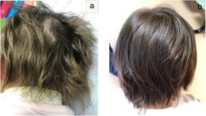 a. Decoloración verdosa del cabello durante el tratamiento. b. Normalización del color en la actualidad.
