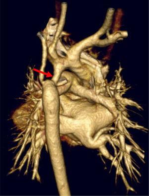 Reconstrucción tridimensional por TC. Coartación con hipoplasia de arco aórtico. Cortesía Dra. Bret.