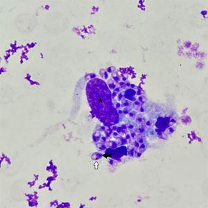 Microscopia óptica. Se aprecia un macrófago con su núcleo (asterisco) y un citoplasma que contiene en su interior múltiples amastigotes de Leishmania sp. Los amastigotes poseen un núcleo (flecha negra) y un cinetoplasto (flecha blanca) (Giemsa, x1.000).